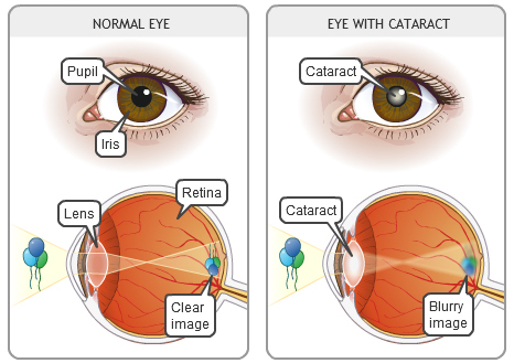 Normal eye versus eye with a cataract