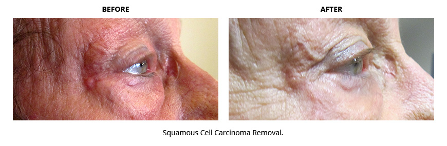 Squamous Cell Carcinoma Removal Before and After